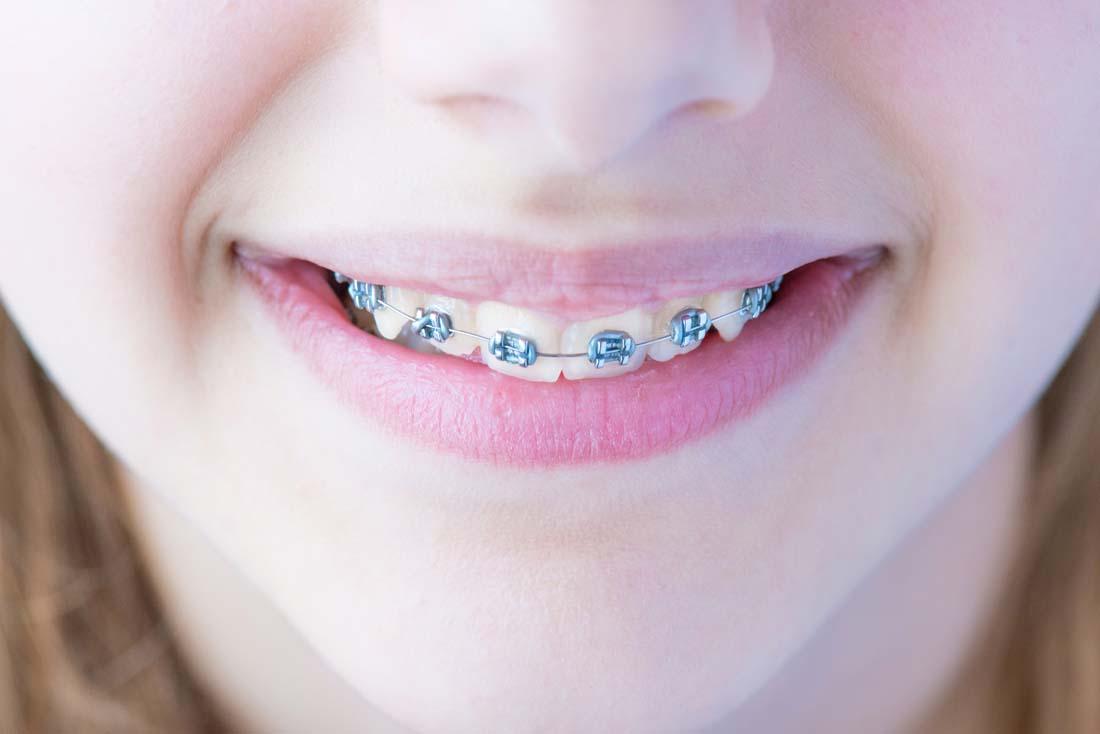 牙齿矫正 <br&gt 全新  价格:1000 <br> <img src=http://p.kqzp.cn/img/up/img/58f9d06c458cd.jpg width=150 &gt